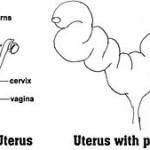 Piometra o infección de útero